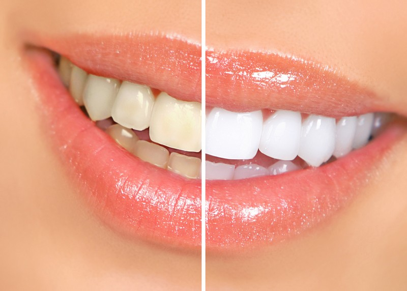 teeth whitening services Brentwood, TN